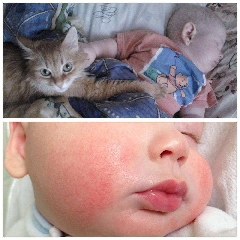 Как избавиться от аллергии на кошек навсегда в домашних условиях?