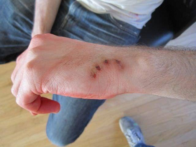 Болезнь кошачьих царапин: что делать, если укусила кошка и опухла или покраснела рука, чем лечить укус кота
